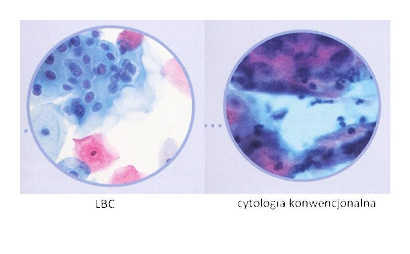 porownanie_cytologii-001-2014-04-23 _ 17_58_38-75